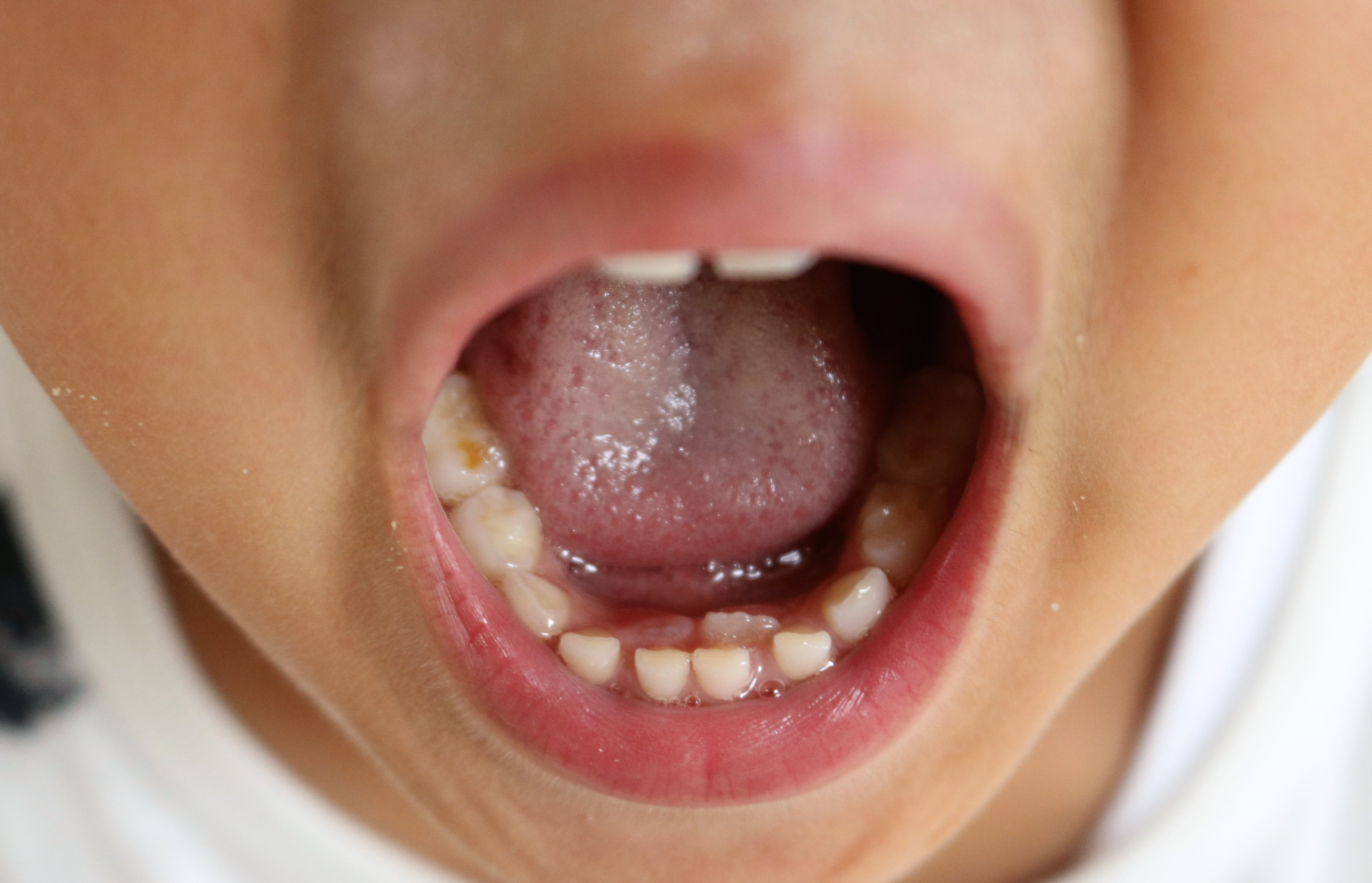 永久歯 生える 乳歯 抜け ない