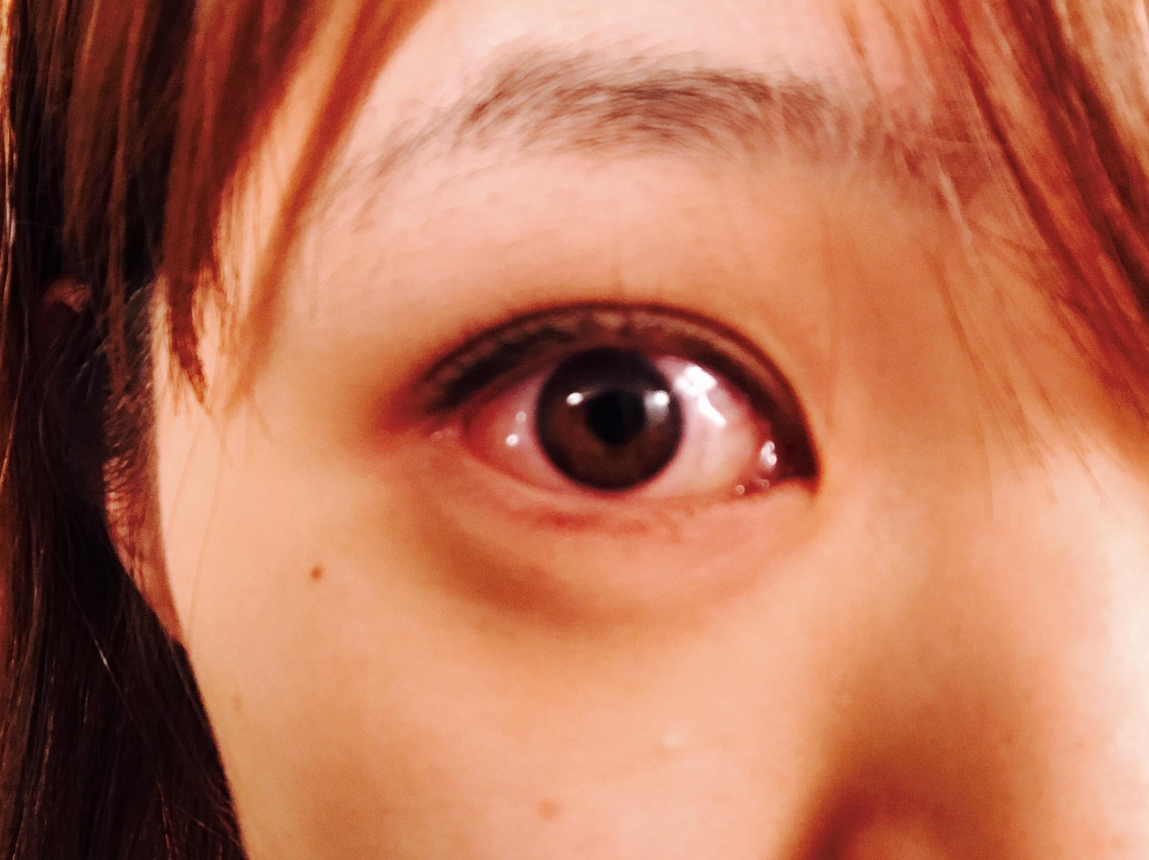 涙 袋 腫れ 片目 痛い 急に目が痛くなった目の痛みの原因とは?|日本医療協会