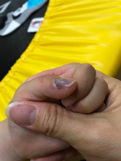 指 挟む 内出血 指挟む時に内出血を起こした時の処置法