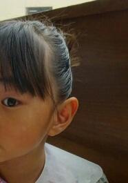 【心配事】娘の日焼けによる肌のムラ 日焼け止めの選び方