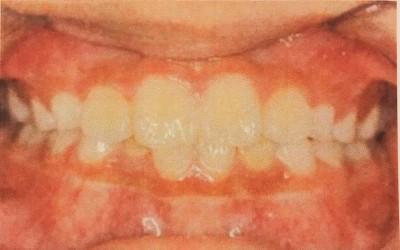 口コミで評判の良い小児矯正歯科を紹介してもらい小4の娘を連れて行った話