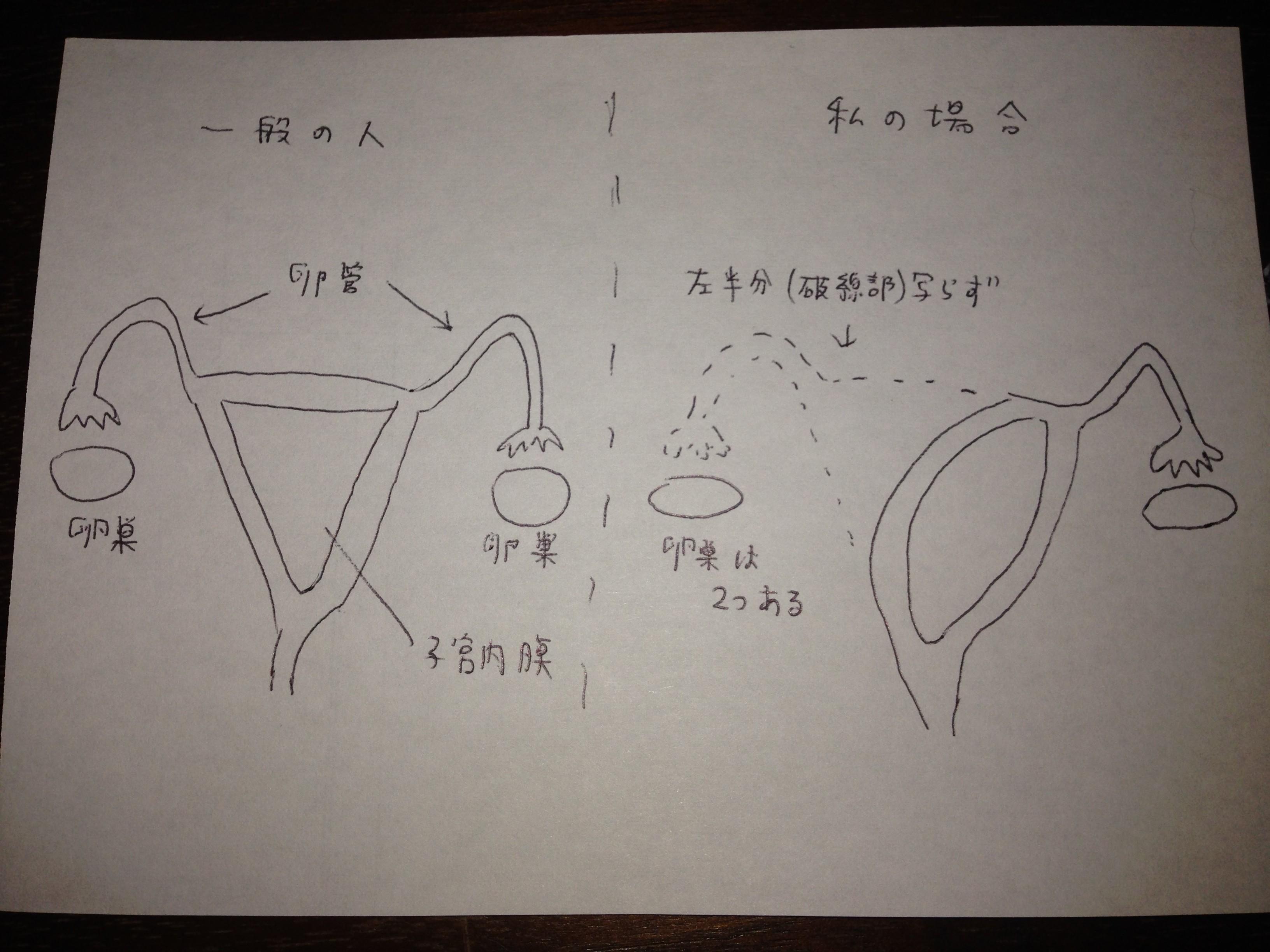 検査 造影 卵 管