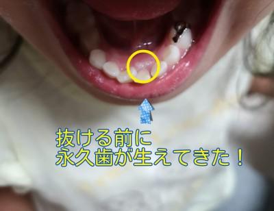 乳歯が抜けてないのに、永久歯が生えてきた!抜く?歯並びは?